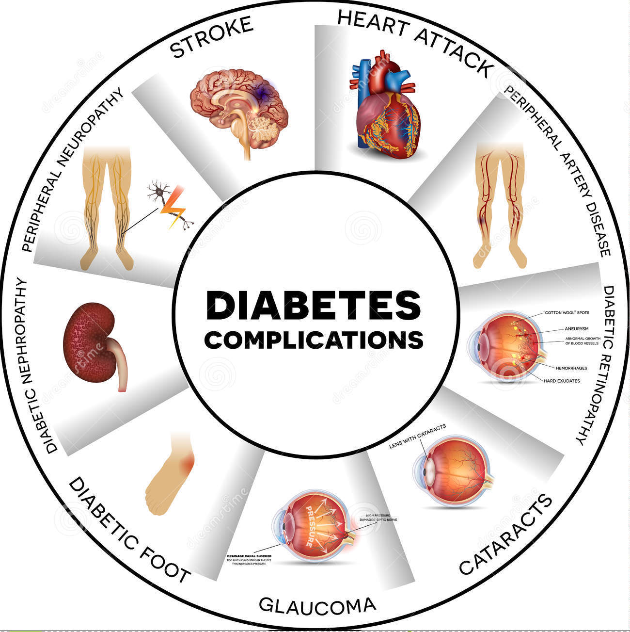 Diabetes is Considered as Mother of All Diseases