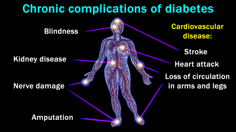 diabetes_chronic-complication