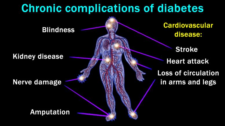 diabetes_chronic-complication