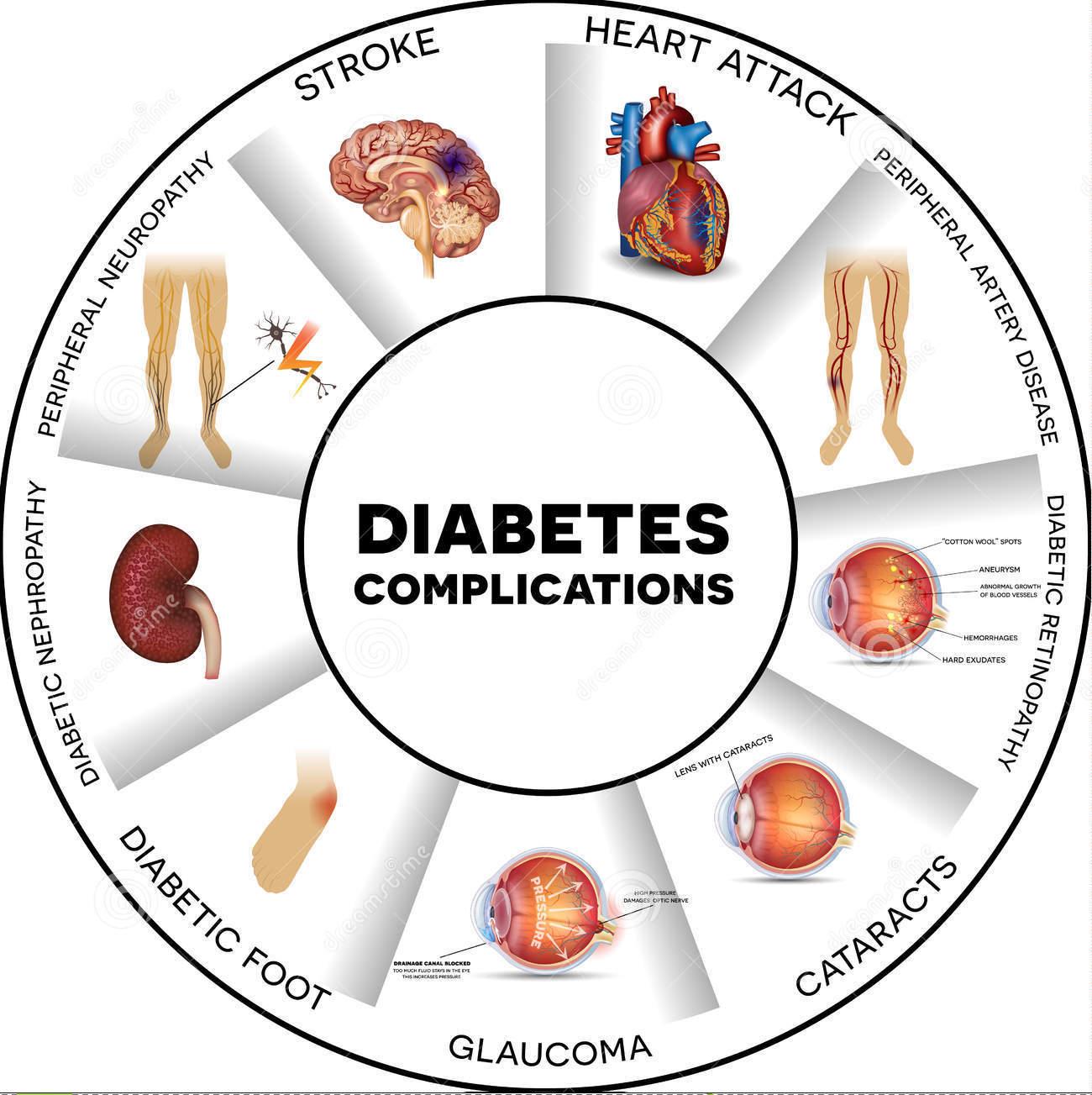 Dangerous complications of Diabetes